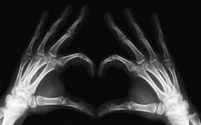 Picture Hands, X-ray, Limbs, Fingers